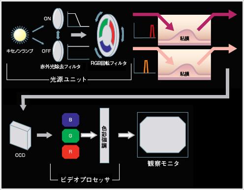 IRIのイメージングプロセス
