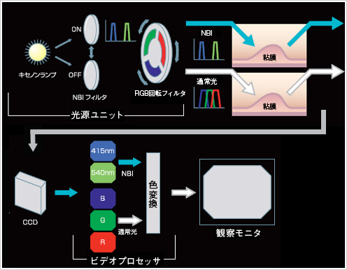 NBIのイメージングプロセス